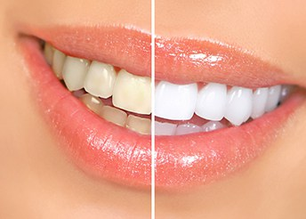 Maintaining the Perfect Smile With Teeth Whitening