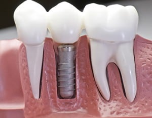 The Solution for Missing Teeth: Dental Implants