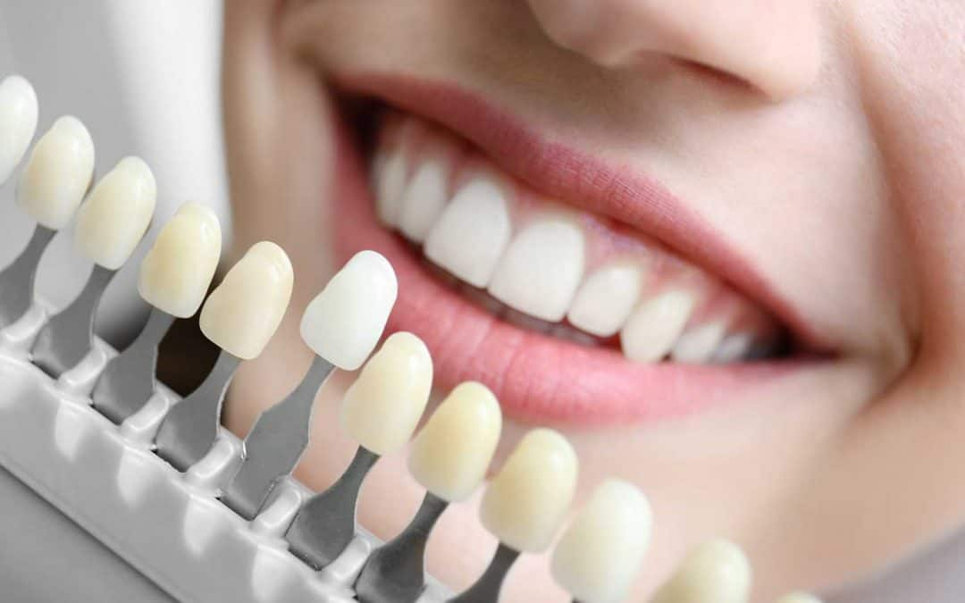 Teeth Whitening Sydney: At Home VS Dentist Administered