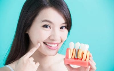 Dental Implants: How They Compare to Alternatives