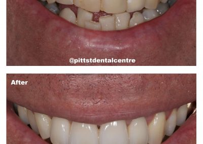 Before and after Dental Crowns