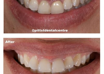 Before and After Phillips Zoom! Teeth Whitening