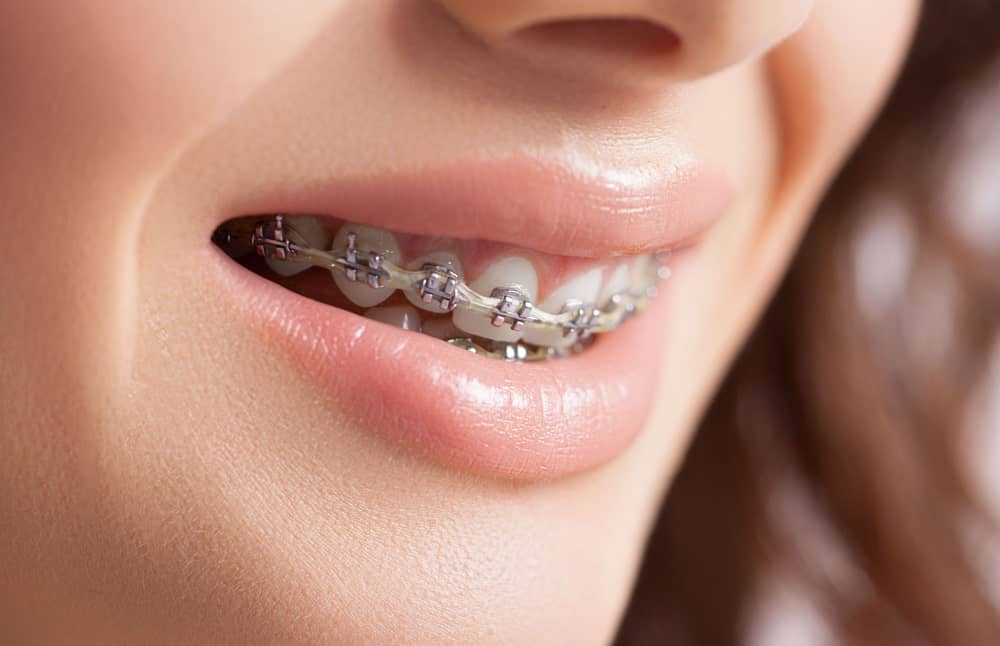 Orthodontic Braces 101: All You Need to Know
