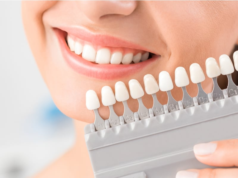 Benefits of Whiter Teeth